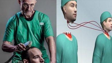 Photo of زراعة الرأس في جسد آخر هل هي حقيقة ممكنة أم ضرب خيال؟
