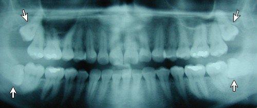 فقد أسنان الفك السفلي